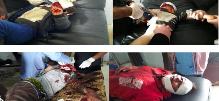 La Turchia continua lo spargimento di sangue di Afrin- Barbarie a Jindirese: Molti civili uccisi